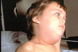 mumps-CDC-Unite... Mumps Cdc